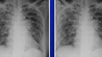 two chest x-rays