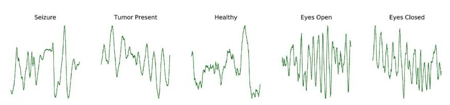 Five EEG abnormality graphs labeled as seizure, tumor present, healthy, eyes open, and eyes closed